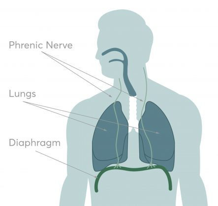 Anything that irritates the phrenic nerve can then stimulate the diaphragm and cause hiccups.
